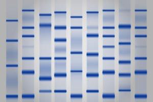 تحليل بروتينات الدم الكهربائي