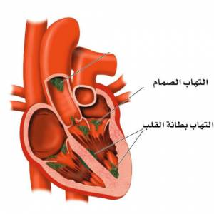 التهاب شغاف القلب